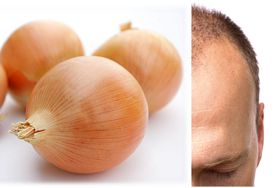 How To Prevent Hair Loss With Onion Juice