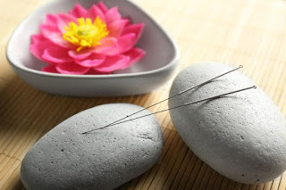 Acupuncture: A Natural Solution to Stress